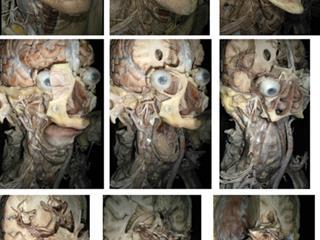 4D Interactive Anatomy